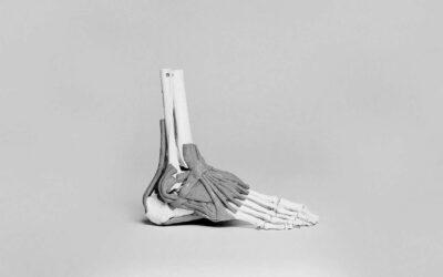 Foot Pathologies